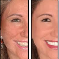 microderm before after